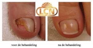 LCN behandeling